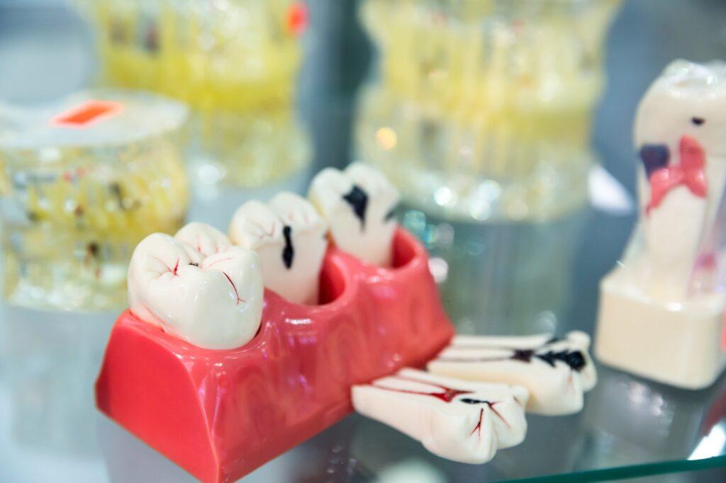 Denture treatment, prosthetic dentistry, medicine